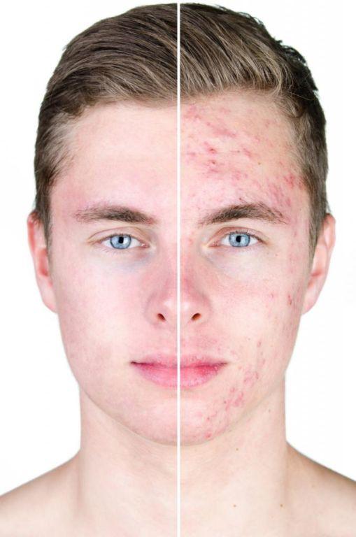 Ретинола ацетат для кожи: инструкция по применению в домашних условиях, отзывы об эффективности стиль,мода, Мода и стиль